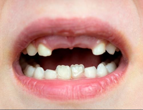 Top Dental Concerns in Children