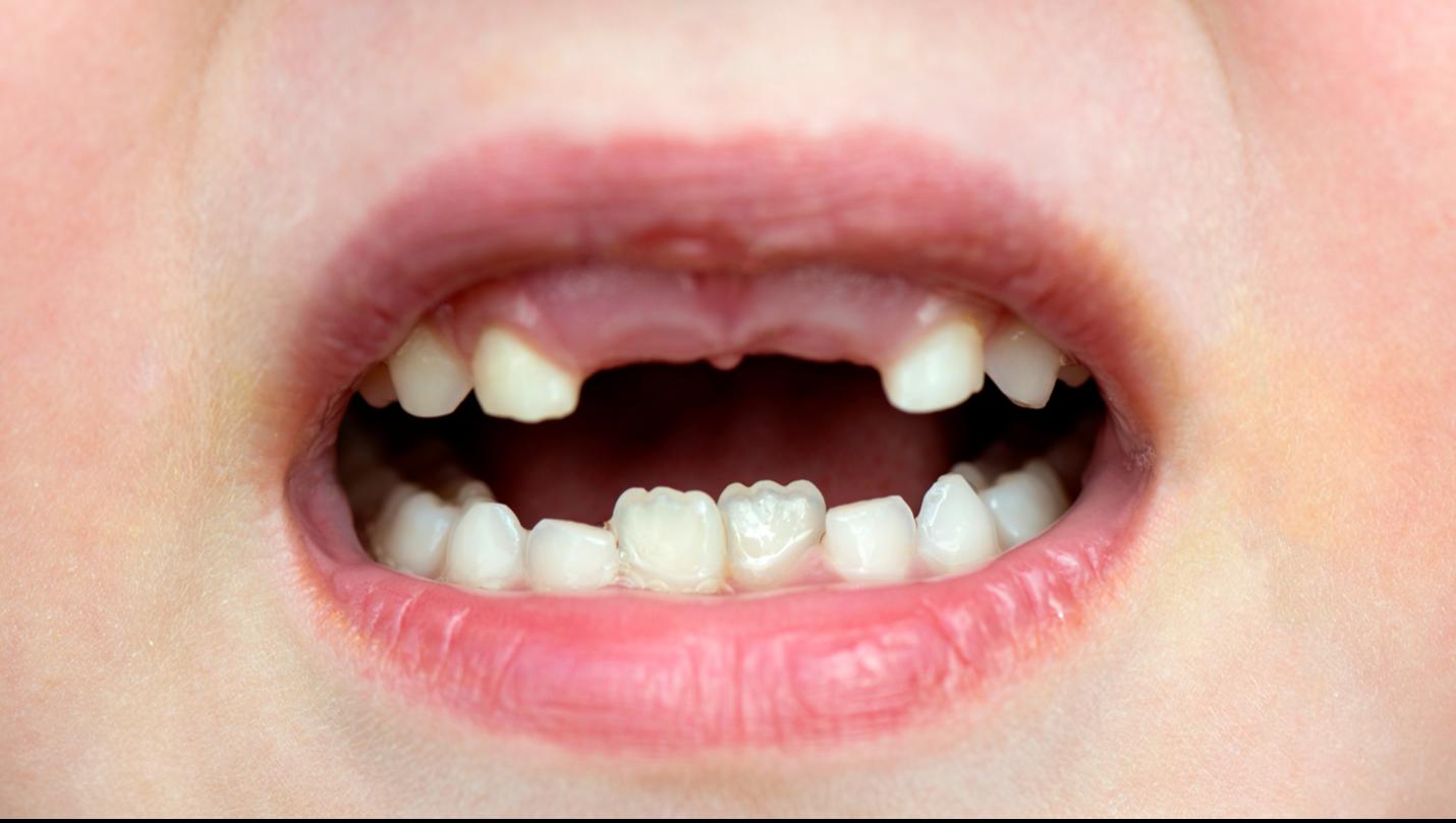 Pediatric dentist specialties in Kansas City, Mo