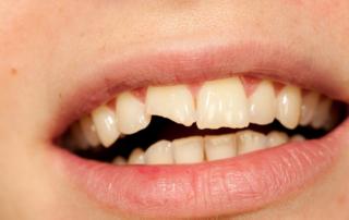 pediatric dental specialist in Kearney